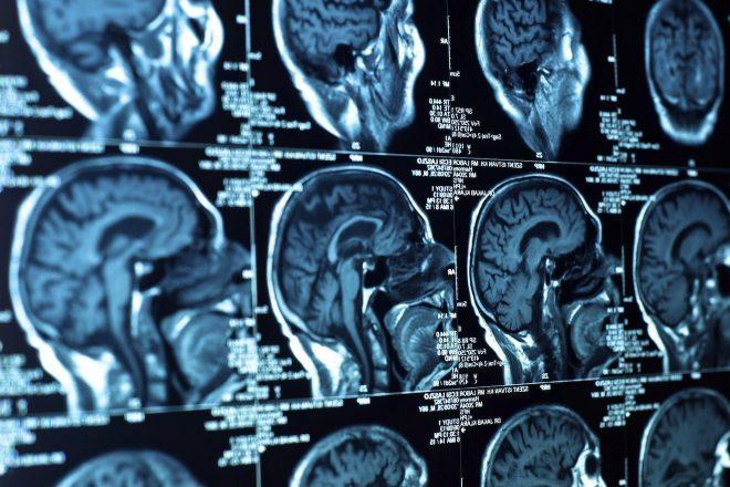 Estudo Mostra Importância Da Música No Desenvolvimento Cerebral